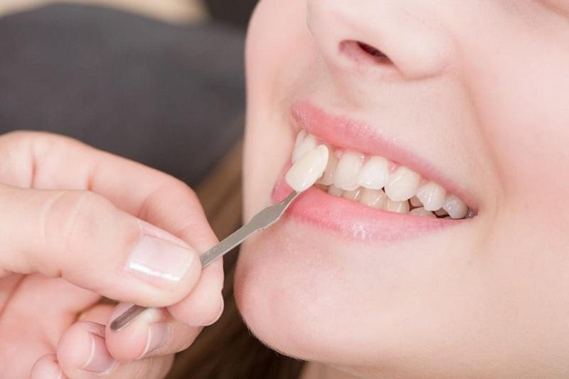 Bọc sứ răng cửa có tính thẩm mỹ cao hơn trám răng