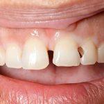 Bạn nên làm gì khi bị sâu răng cửa?
