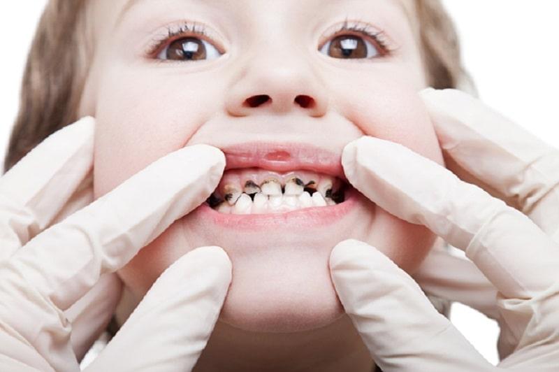 Cha mẹ cần tìm hiểu nguyên nhân gây sún răng của bé để có phương pháp điều trị