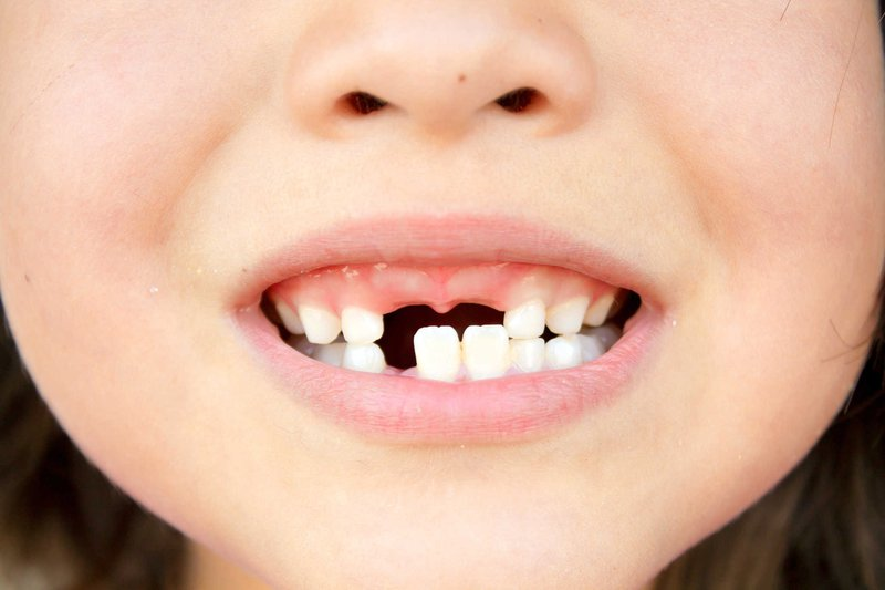 Mất răng sớm có thể khiến xương hàm của bé phát triển không cân đối