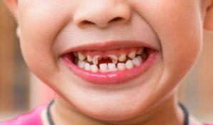 Sún răng cửa ở trẻ và những điều cha mẹ cần biết