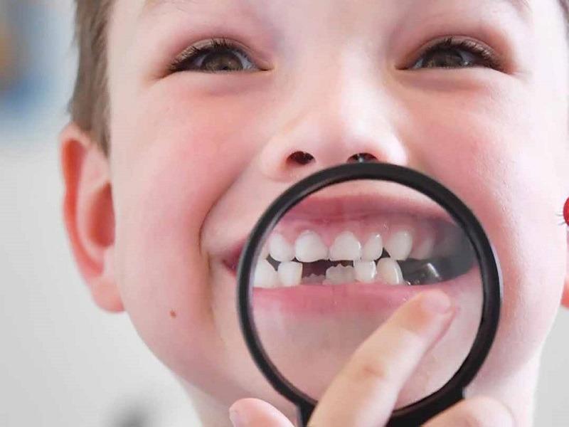 Sún răng là bệnh răng miệng phổ biến ở trẻ em