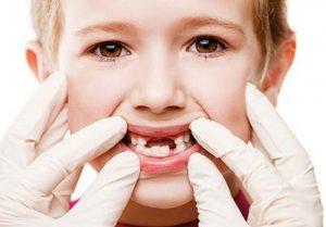11 cách trị sâu răng cho bé tại nhà hiệu quả và an toàn