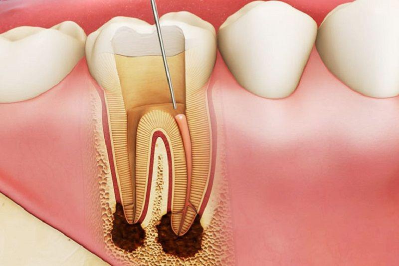 Đây là phương pháp giúp bảo vệ răng chắc khỏe