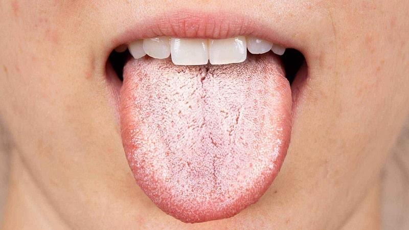 Những mảng trắng ở lưỡi là biểu hiện thường thấy nhất