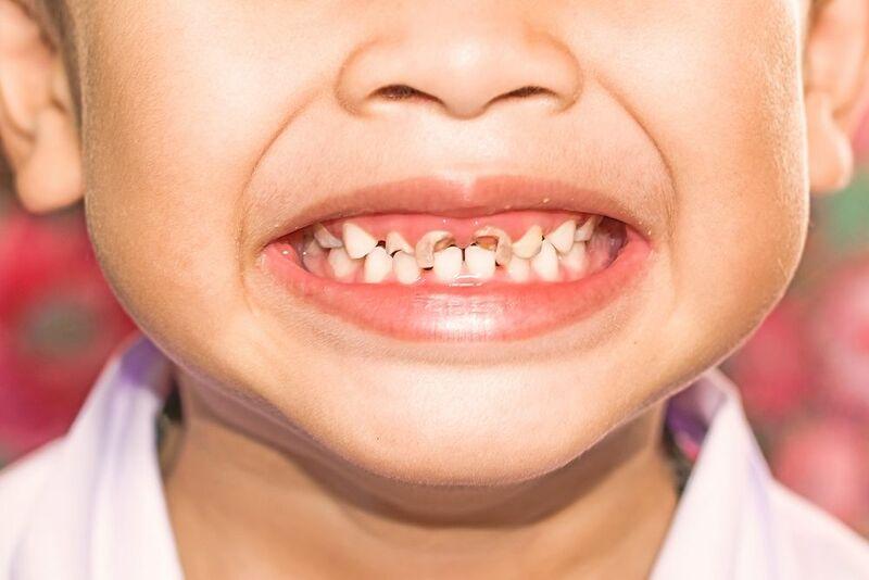 Sâu răng là một trong số những hệ lụy nghiêm trọng khi trẻ chậm mọc răng