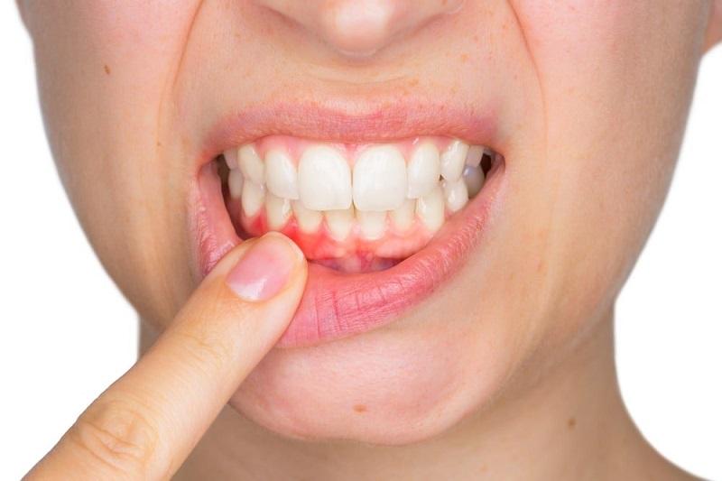 Tổn thương mô mềm trên răng là biến chứng thường thấy của viêm lợi hôi miệng