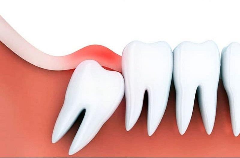 Dấu hiệu nhận biết và điều trị viêm lợi trùm răng khôn là một trong những bệnh lý gặp phải trong quá trình mọc răng khôn