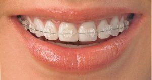 Bảng giá niềng răng mắc cài pha lê hiện nay là bao nhiêu?