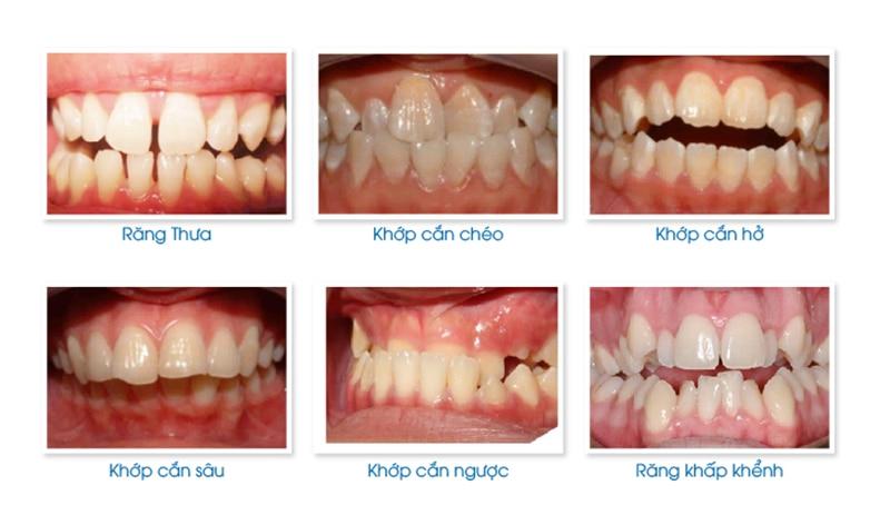 Tình trạng răng miệng sẽ ảnh hưởng đến bảng giá niềng răng mắc cài pha lê
