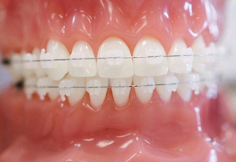 Mắc cài pha lê là phương pháp niềng răng được cải tiến từ mắc cài kim loại truyền thống.