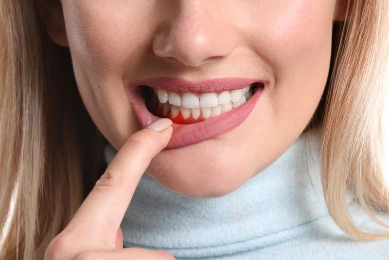 Nếu đang gặp các vấn đề về răng miệng khác thì bạn sẽ rất dễ bị ê răng sau khi lấy cao răng