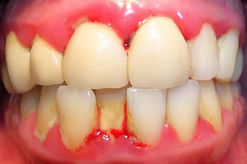 Bị ê buốt có thể là dấu hiêu của bệnh nhiễm trùng nướu răng