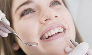 Cần làm gì khi bị ê răng sau khi lấy cao răng?