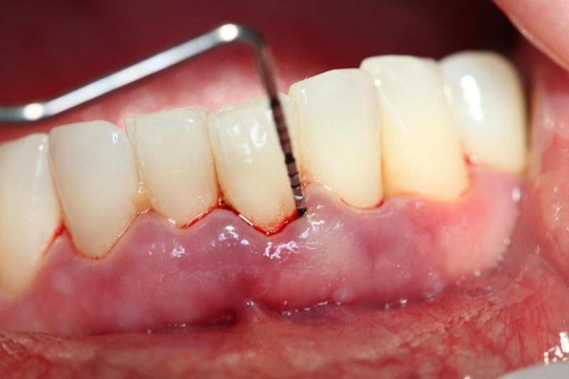 Viêm nha chu khi niềng răng buộc phải dừng chỉnh nha