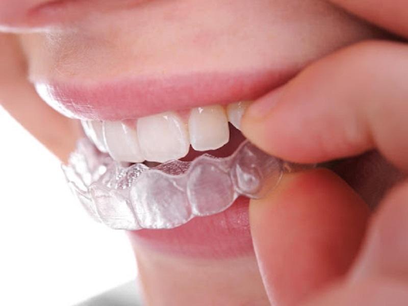 Niềng răng trong suốt đem lại tính thẩm mỹ cao trong quá trình chỉnh nha