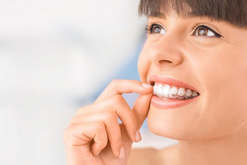 Niềng răng Invisalign là công nghệ chỉnh nha hiện đại bậc nhất ngày nay