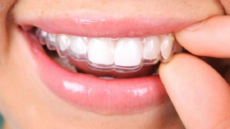 Niềng răng Ecligner rẻ hơn nhiều so với các phương pháp niềng răng trong suốt khác