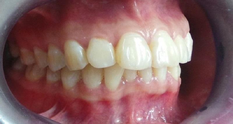 Với bệnh nhân gặp tình trạng hô nhẹ, niềng răng trong suốt hoàn toàn có thể khắc phục triệt để