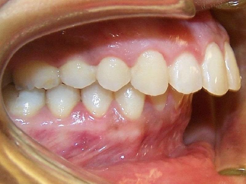 Với trường hợp sai lệch khớp cắn quá nặng bạn không nên lựa chọn niềng răng trong suốt