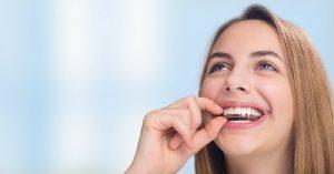 Các loại niềng răng trong suốt và lưu ý cần biết