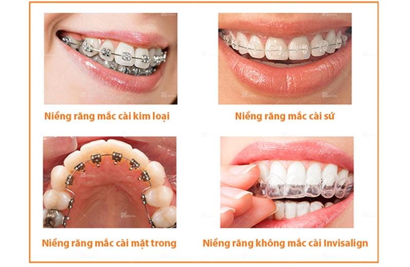 Niềng răng hô hàm trên giá bao nhiêu còn phụ thuộc vào phương pháp niềng răng.