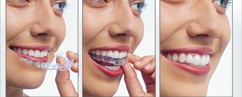 Chi phí niềng răng hô hàm không mắc cài thường giao động từ 70 - 120 triệu.