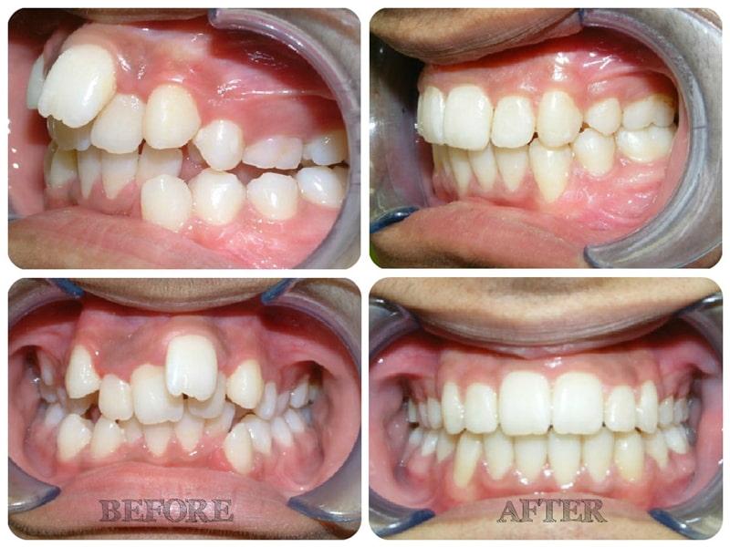 Niềng răng khấp khểnh bao nhiêu tiền sẽ phụ thuộc vào nhiều yếu tố.
