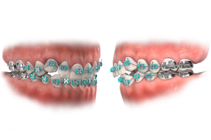 Giá niềng răng khấp khểnh thường giao động theo loại mắc cài.