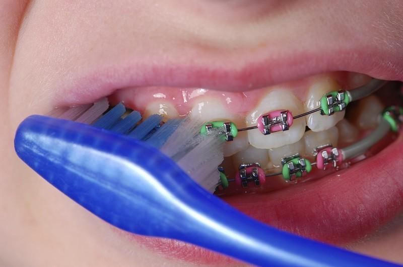Nguyên nhân gây viêm nha chu khi niềng răng đến từ thói quen vệ sinh sai cách
