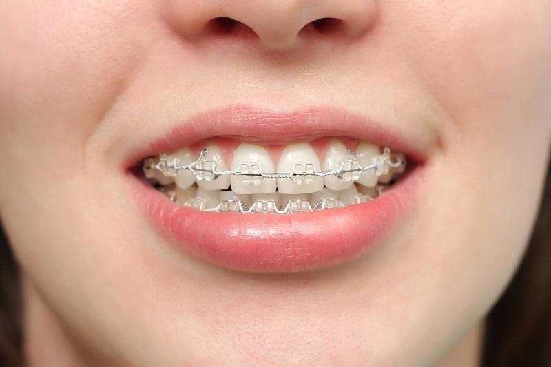 Niềng răng có hôn được không là vấn đề đang rất được quan tâm hiện nay