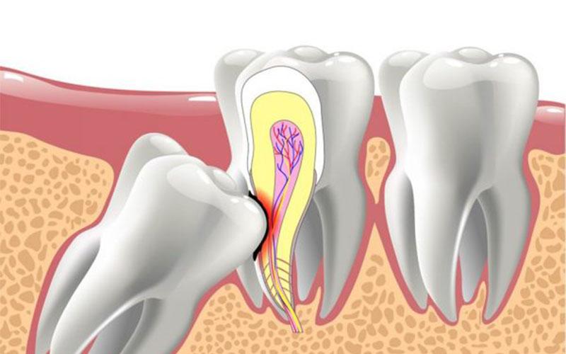 Răng khôn thường xuất hiện khi con người bước vào tuổi trưởng thành