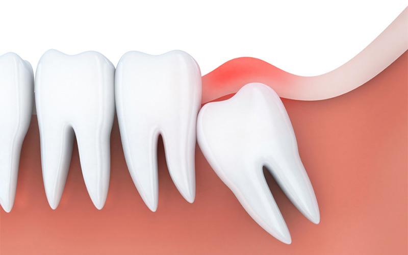 Khi niềng răng nên nhổ răng khôn nếu răng số 8 đang mọc hoặc ảnh hưởng tới các răng xung quanh