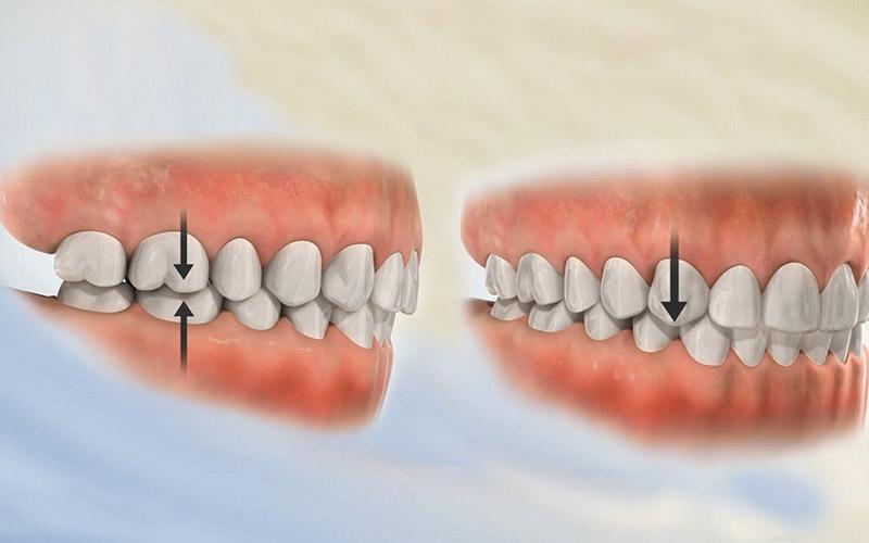 Nhổ răng khôn giúp giảm nguy cơ xô lệch hàm theo hướng tiêu cực
