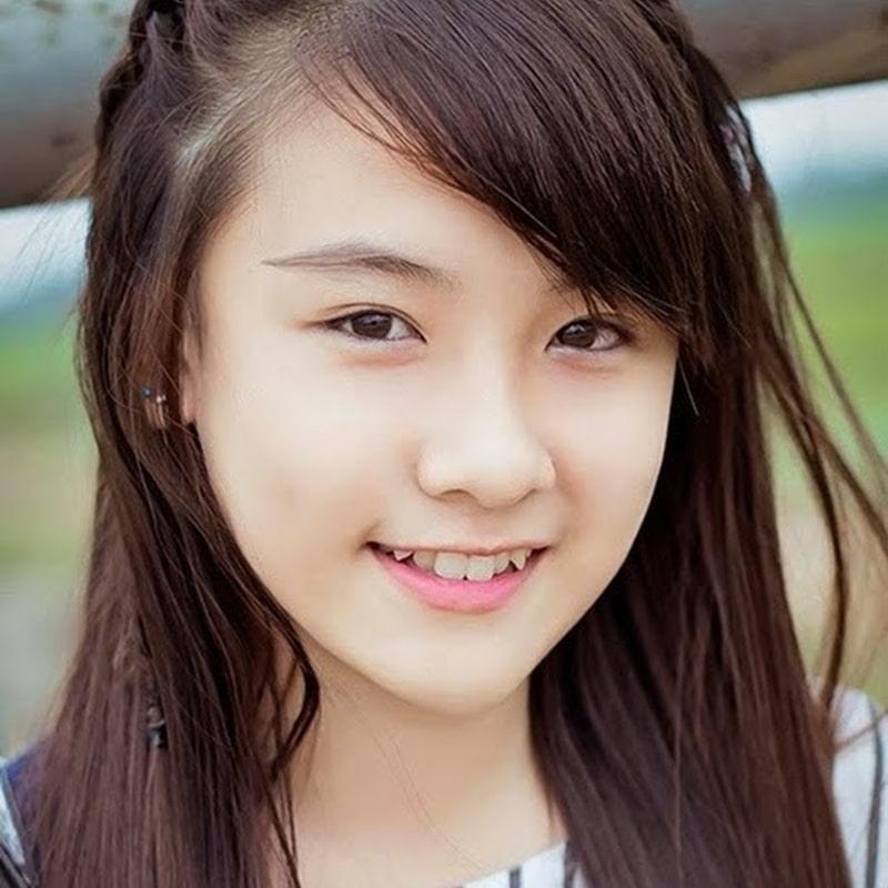 Răng khểnh là một nét duyên, tuy nhiên, nó làm giảm sức nhai và tiềm ẩn nguy cơ cơ mắc các bệnh về răng miệng.