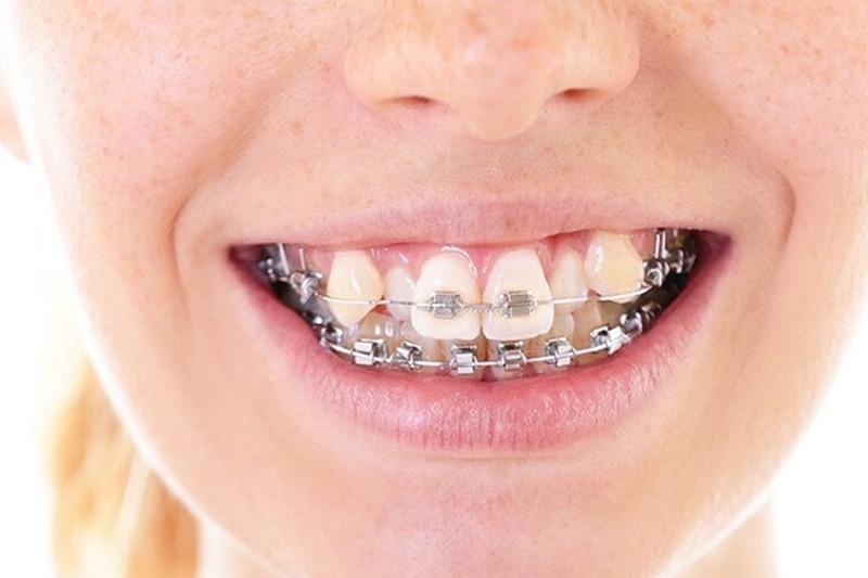 Niềng răng có mất răng khểnh không là câu hỏi của rất nhiều người khi thực hiện niềng răng?