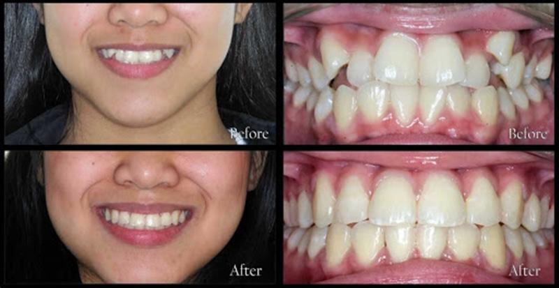 Thời gian của 1 ca niềng răng khểnh thường sẽ dao động từ 1 - 3 năm.