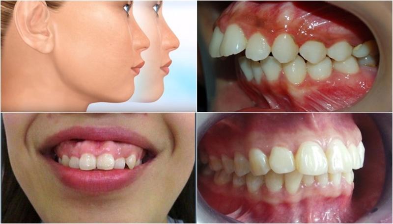 Dù răng luôn thẳng đẹp nhưng do xương hàm phát triển quá mức so với hàm dưới