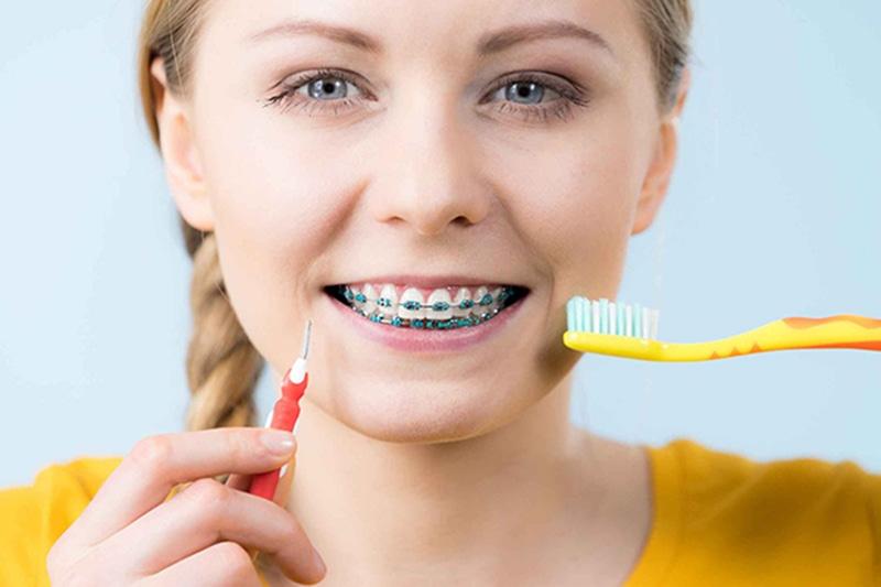 Chăm sóc răng miệng đúng cách sẽ giúp bạn tránh phát sinh các bệnh lý như: sâu răng, tụt lợi, viêm nha chu, áp xe răng trong quá trình niềng.