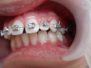 Giá tiền niềng răng hô hàm trên là bao nhiêu? Nên lưu ý gì khi niềng?