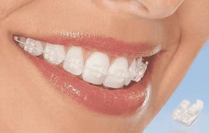 Niềng răng mắc cài sứ dây trong có thực sự hiệu quả không?