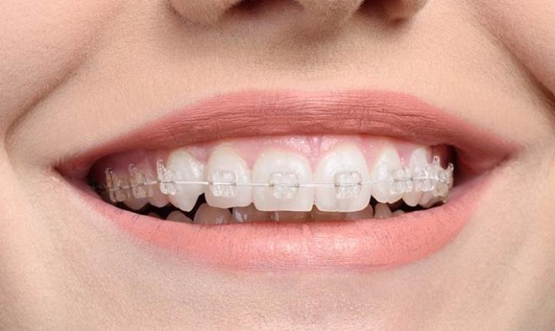 Niềng răng mắc cài sứ dây trong do có màu tương thích với màu răng