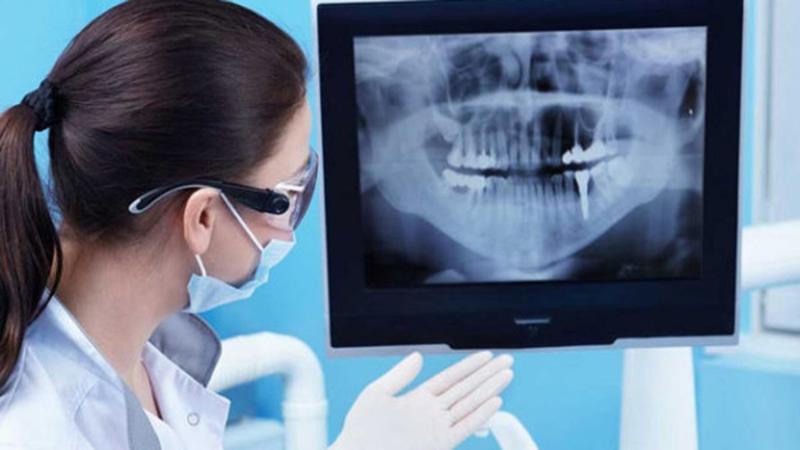 Phim X-quang nha khoa sẽ giúp cho bác sĩ thấy được hình ảnh về mô cứng và mô mềm