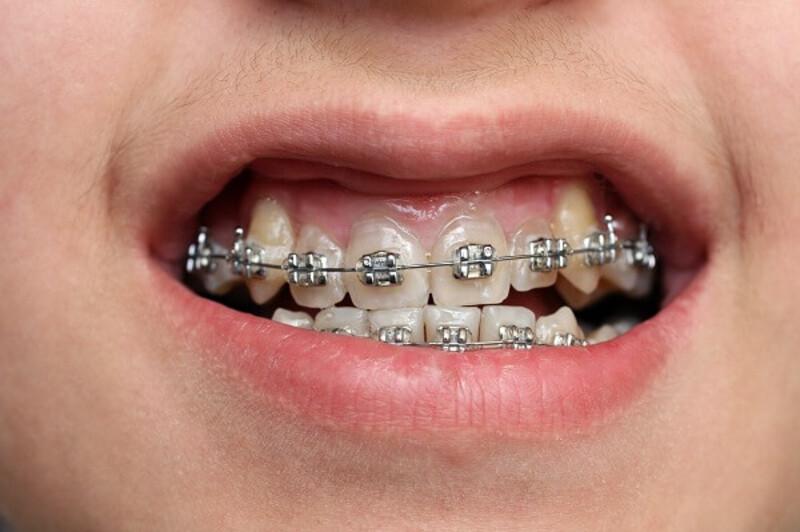 Việc niềng răng móm còn dựa vào nhiều yếu tố khác nhau