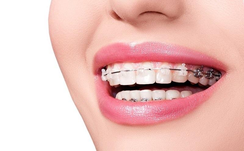 Bạn nên lựa chọn những nha khoa chuyên sâu về niềng răng