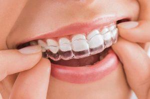 niềng răng ở đâu uy tín