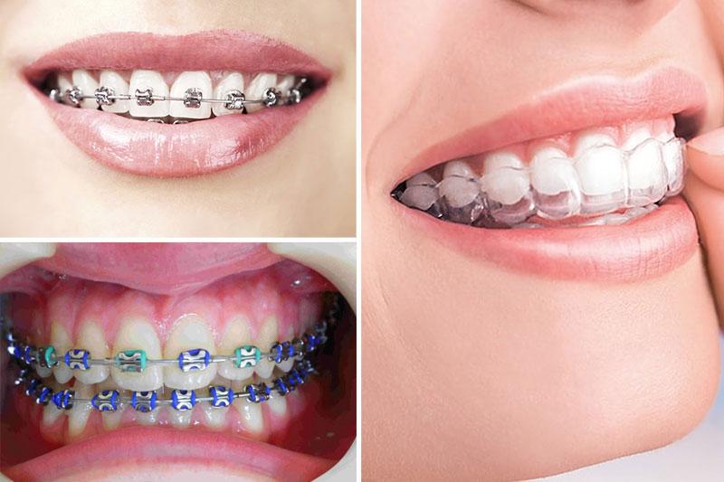 Sử dụng biện pháp niềng răng tại nhà cần tuân theo đúng chỉ định