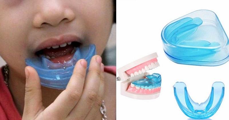 Hàm Trainer giúp bé bỏ những thói quen gây hại cho răng