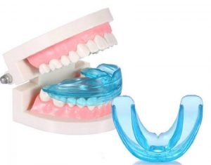 Niềng răng Trainer tại nhà có thực sự hiệu quả không?