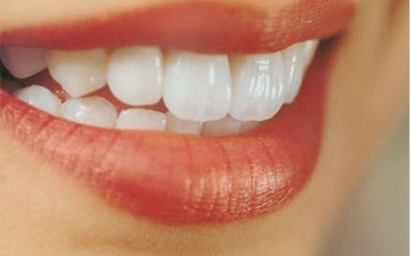 Răng hô nhẹ cũng là một khuyết điểm rất nhiều người châu Á gặp phải